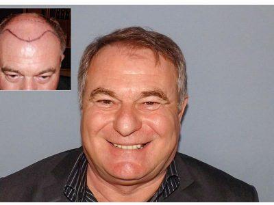 J. CZ. Haartransplantation Vorher Nacher Ergebnis Prohaarklinik Wien