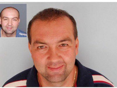 L. D. Haartransplantation Vorher Nacher Ergebnis Prohaarklinik Wien