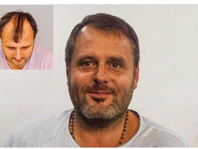 M. K. Haartransplantation Vorher Nacher Ergebnis Prohaarklinik Wien