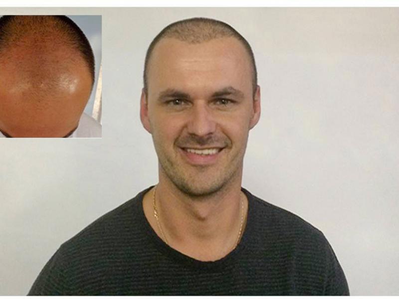 L. K. Haartransplantation Vorher Nacher Ergebnis Prohaarklinik Wien