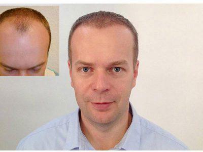 T. L. Haartransplantation Vorher Nacher Ergebnis Prohaarklinik Wien