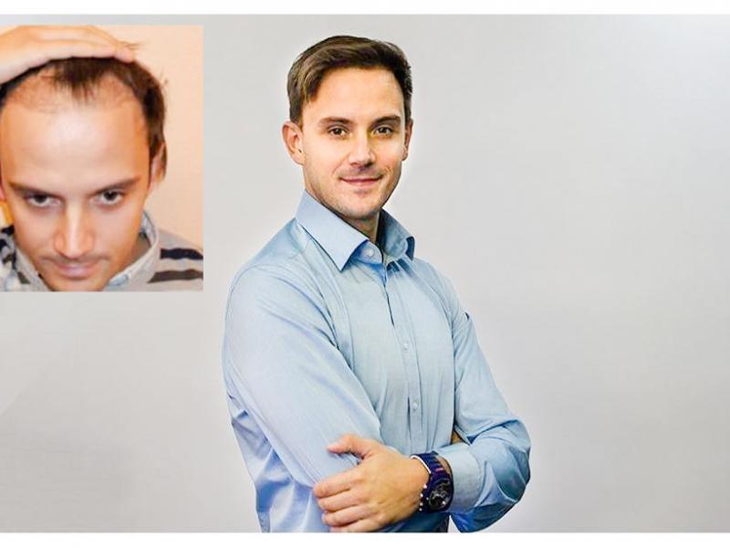 N. S. Haartransplantation Vorher Nacher Ergebnis Prohaarklinik Wien