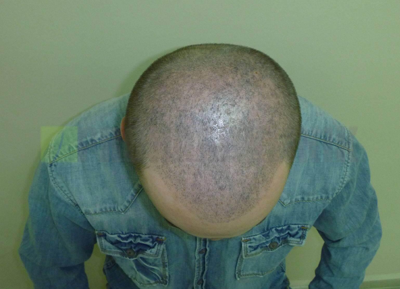 Hair Tattoo Vorher-Nachher Bilder