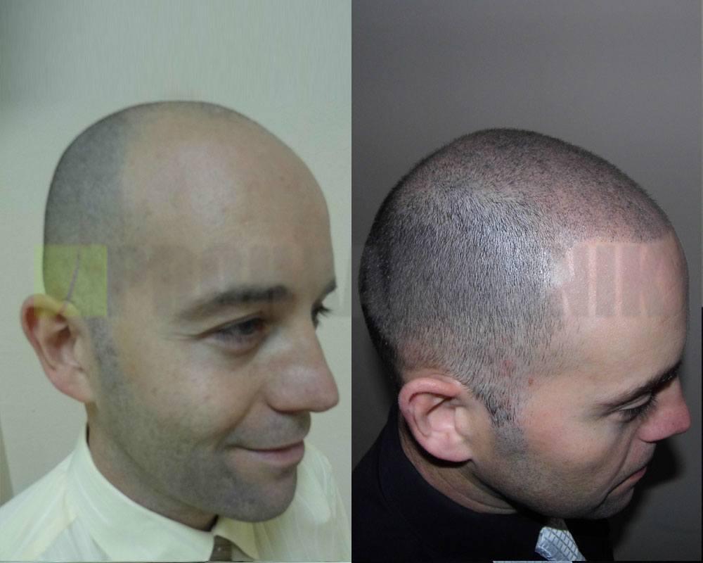 hair-tattoo-vorher-nachher-bilder-seite-barcza