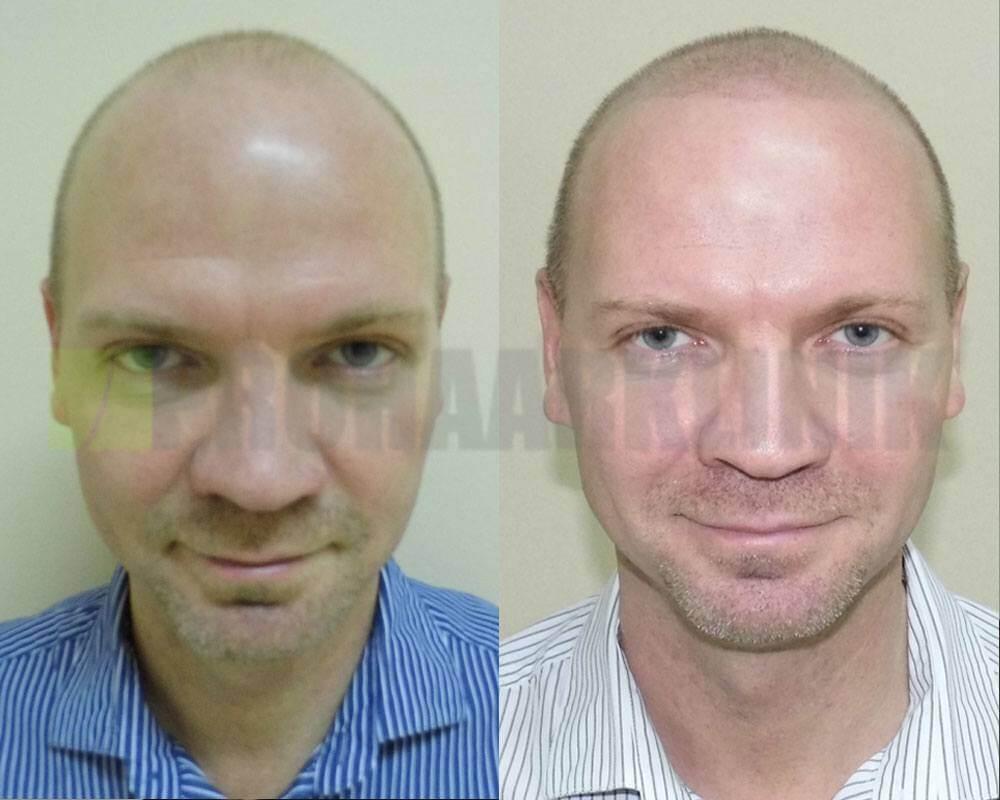 kopfhautpigmentierung-vorher-nachher-bilder-horvath