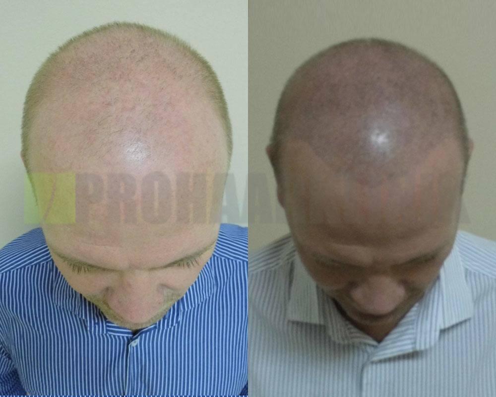 kopfhautpigmentierung-vorher-nachher-bilder-oben-horvath