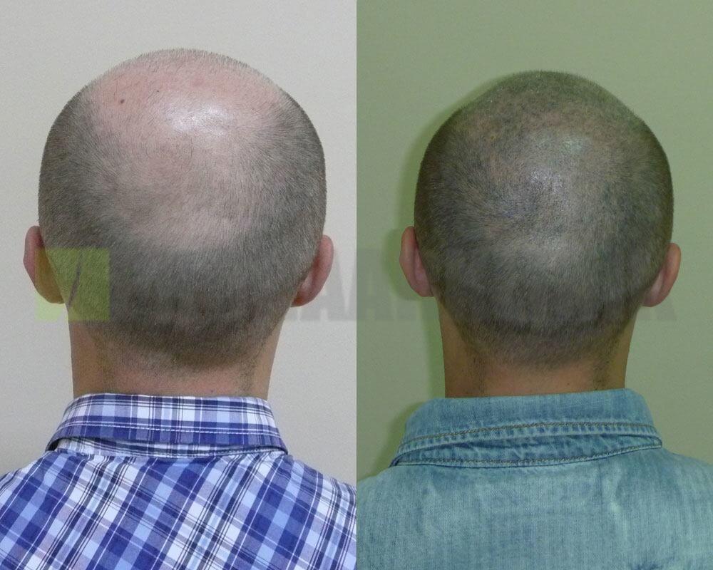kophautpigmentierung-ungarn-vorher-nachher-bilder2