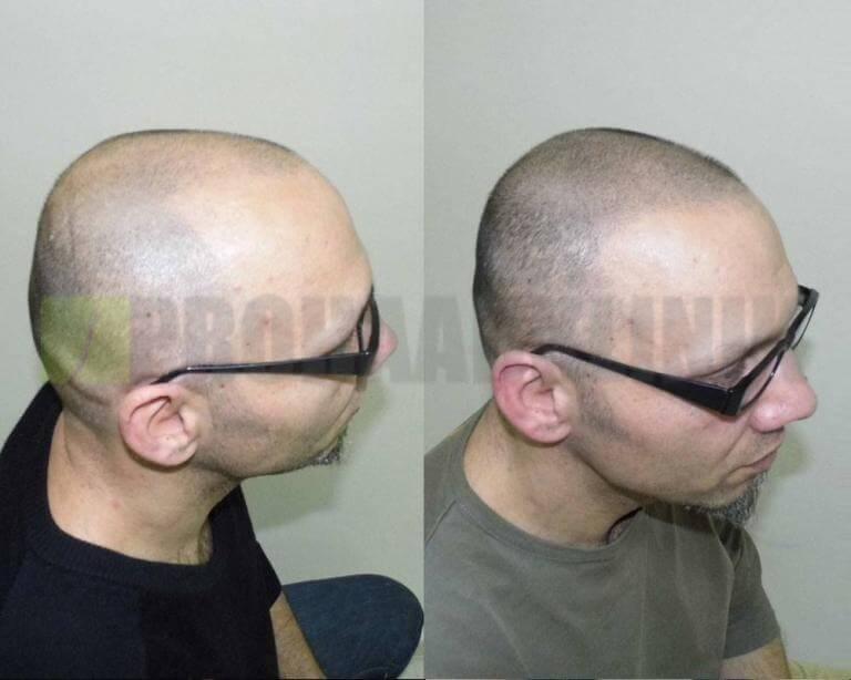 mikro-haar-tattoo-vorher-nachher-bilder-mata-seitenansicht7-768x614