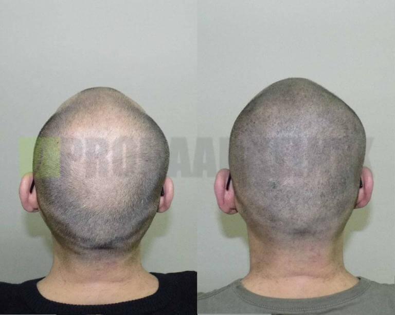 mikro-haar-tattoo-vorher-nachher-mata-hinterkopf5-768x614