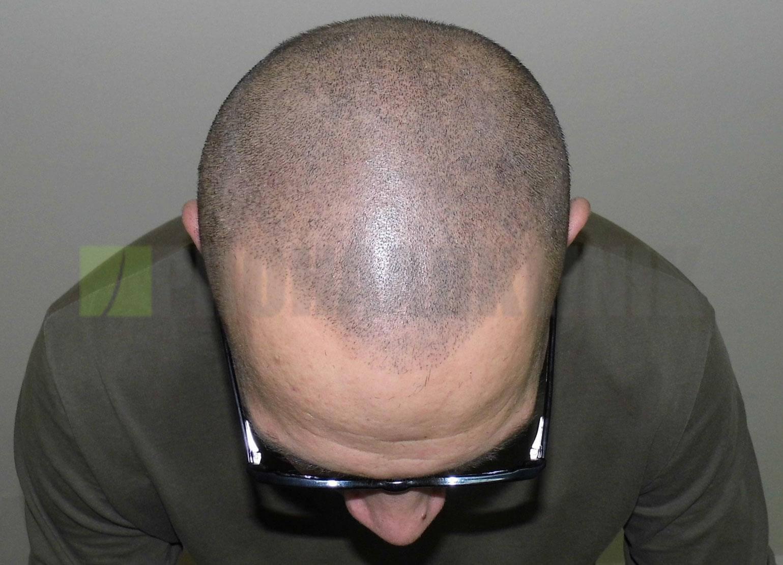 Patient nach Kopfhautpigmentierung nahe Wien
