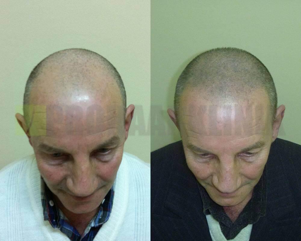 phk-trichopigmentation-vorher-nachher-bilder2