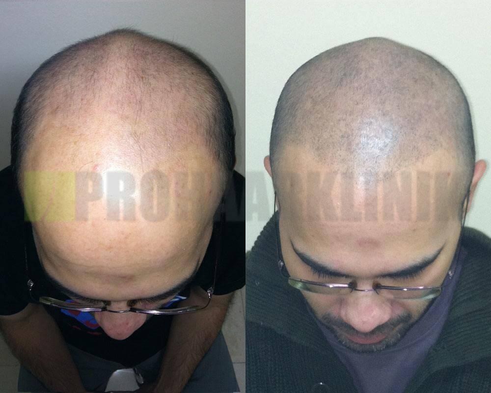 trichopigmentation-vorher-nachher-bilder