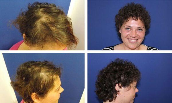 Nach der Haartransplantation