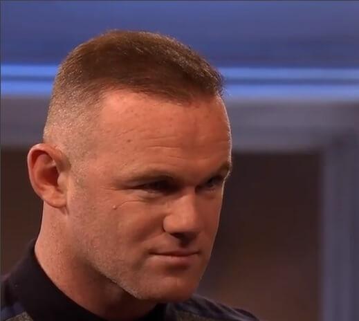 Nach der Haartransplantation – Rooney
