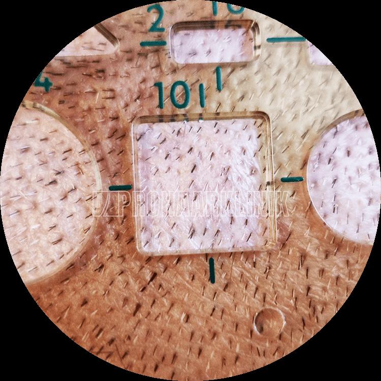 Nahaufnahmefoto: Mehrfarbige Grafts mit hoher Auflösung in einem 10x10 mm Quadrat. Dichte ist 50++ FU / cm2