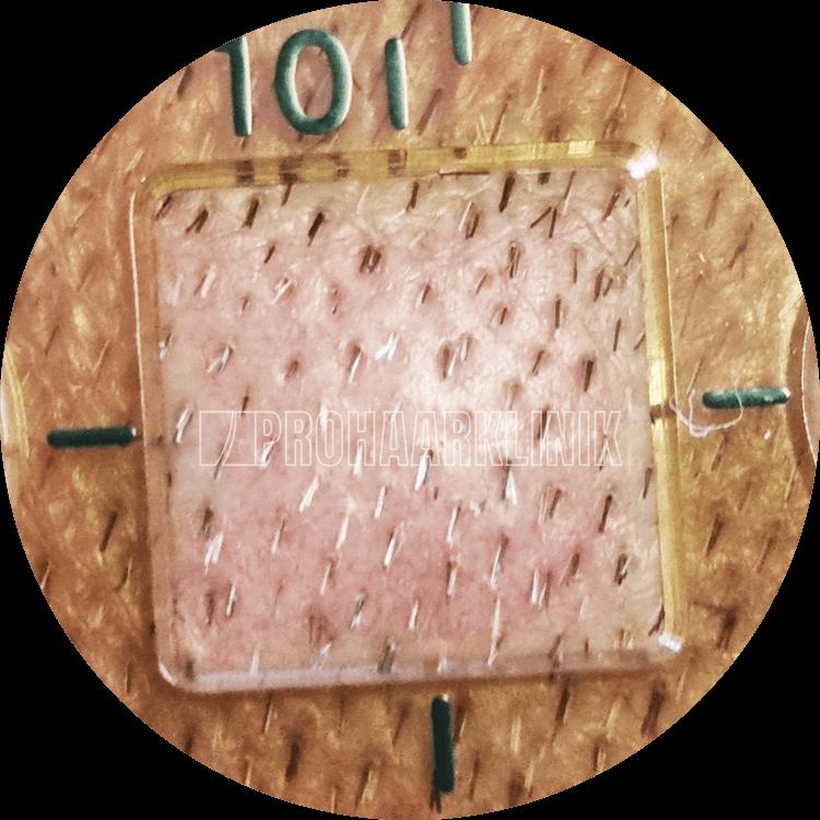 Mehrfarbige Grafts mit hoher Auflösung in einem 10x10 mm Quadrat. Dichte ist 50++ FU / cm2