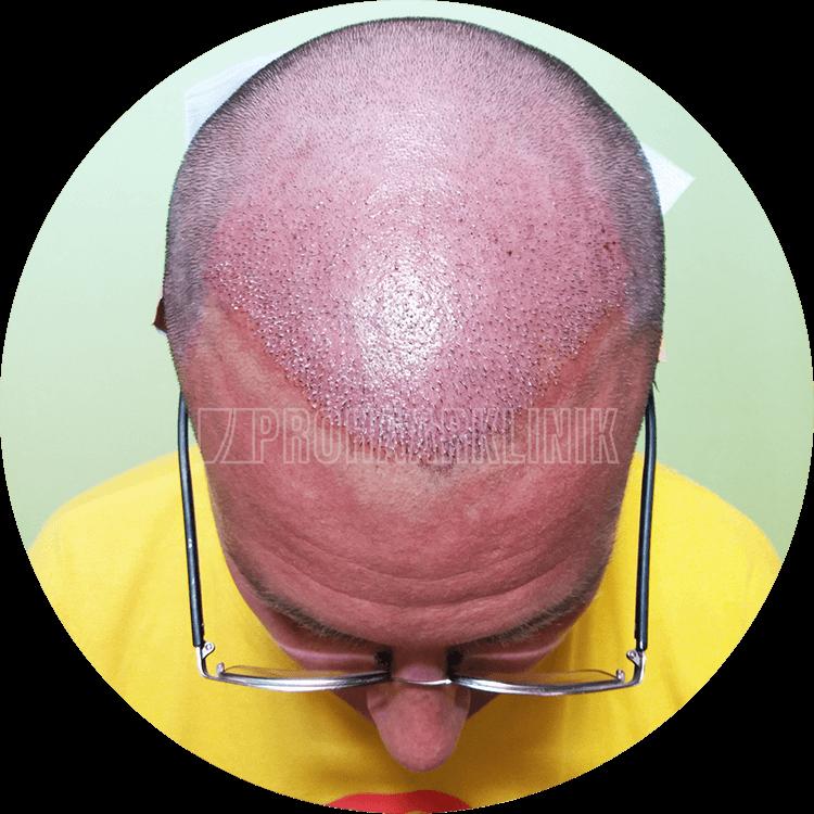 Patient 2: Implantierter Bereich 5 Minuten nach der Haartransplantation. Das nennen wir eine schöne Haartransplantation mit schneller Heilungszeit