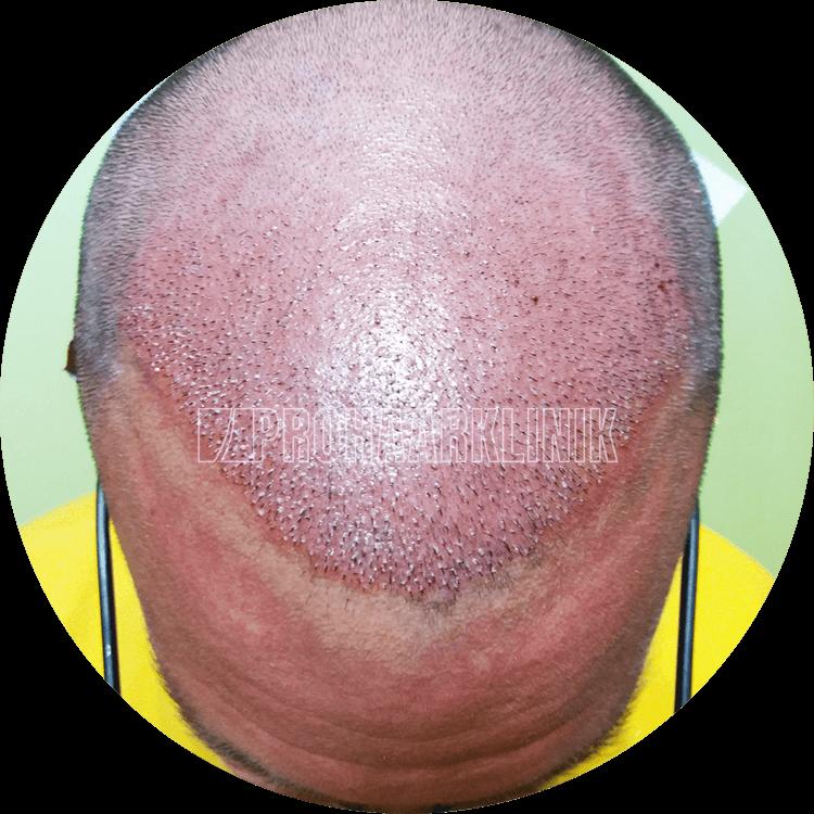 Patient 2: Implantierter Bereich – Bildunterschrift – 5 Minuten nach der Haartransplantation. Alles ausgezeichnet und minimal invasiv. Heilt schnell
