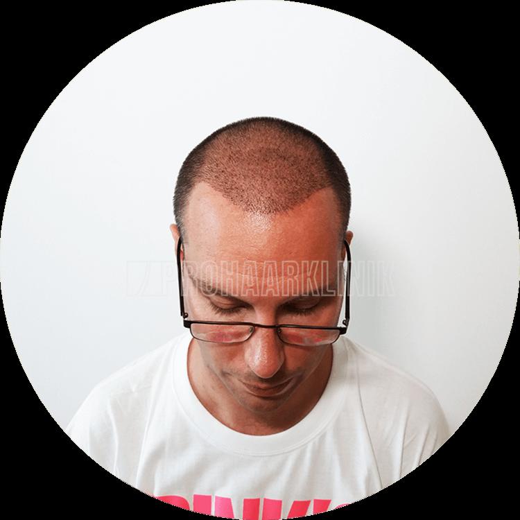 Patient 2: Implantierter Bereich 10 Tage nach der FUE3-Haartransplantation. Ein gutaussehender, schöner Haaransatz! #Kunst