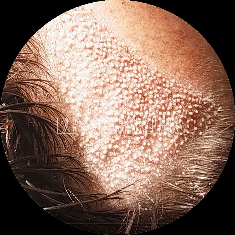 Zufällige, randomisierte Haartransplantation in den Geheimratseckenbereich. Hinweis: eine teilweise Langhaar-Methode, die Haare wurden nur dort geschnitten, wo wir implantiert haben