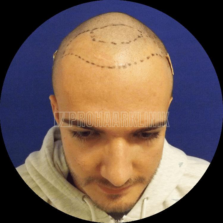 Kulturspezifischer, symmetrischer Haaransatz mit kaukasischer Wellenform - während der Behandlung