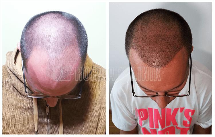 Wenn wir den Haaransatz implantieren, gehen wir immer mit einem natürlichen zufälligen Zickzack vor. Ein natürlich wirkender Haaransatz, macht unsere Kunden glücklich & zufrieden