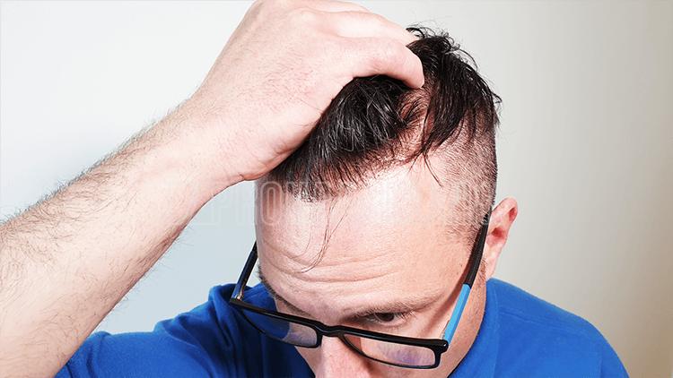 Zickzack im Haaransatz aus der Nähe. Ein natürlicher Haaransatz, lässt Sie immer mindestens 5-10 Jahre jünger aussehen
