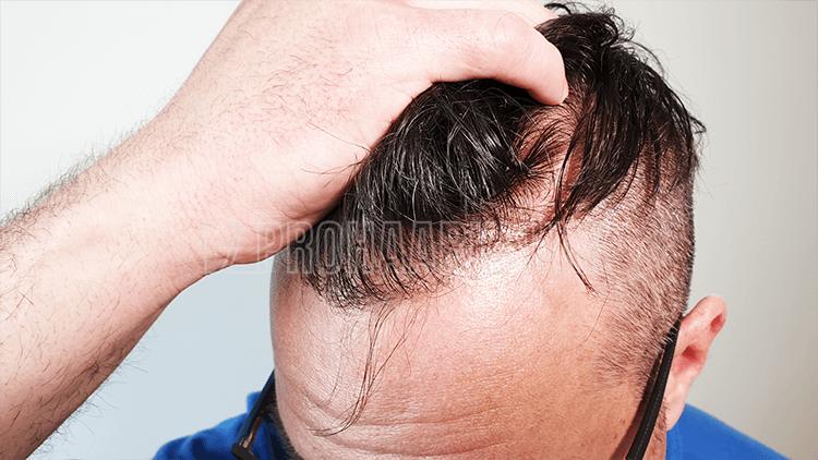 Natürliche Zickzack-Linie im Haaransatz. Hochdichte randomisierte Transplantation vom Besten