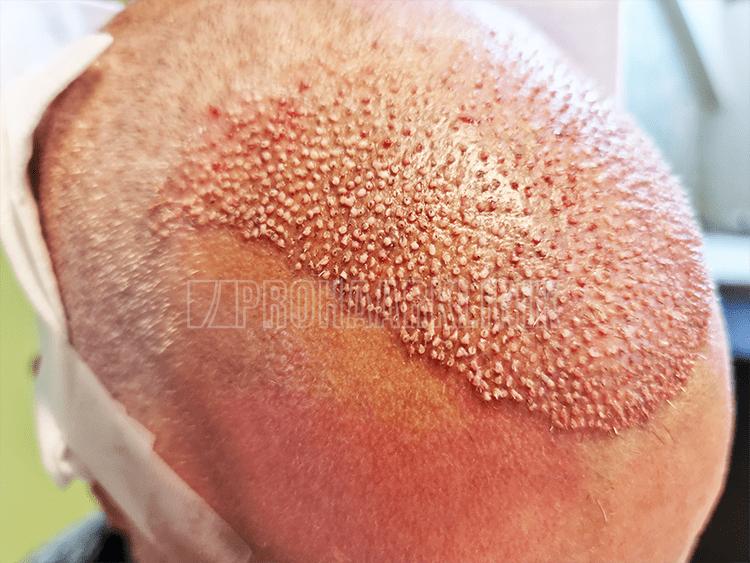 Winkel - Richtung - Tiefe und mehrere andere Faktoren machen unsere S FUE3 Haartransplantation erfolgreich