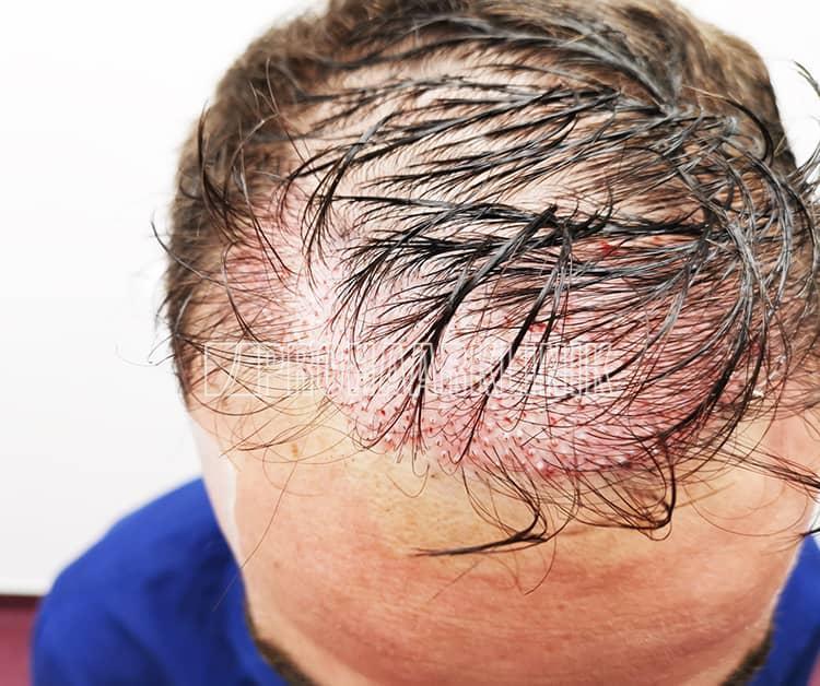Die Langhaarmethode live durchgeführt: Es ist jedoch begrenzt, wie viele Grafts zwischen langen Haaren implantiert werden können. Patient 1
