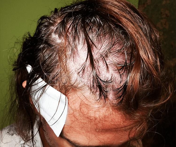 Langhaarmethode live durchgeführt: Patienten sind meistens froh, dass sie keinen kompletten Haarschnitt benötigen