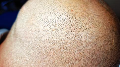 Ein 108-Megapixel-Foto eines dichten Spenderbereichs
