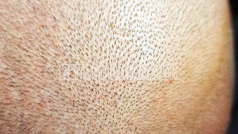 Ein 108-Megapixel-Foto eines dichten Spenderbereichs vergrößert