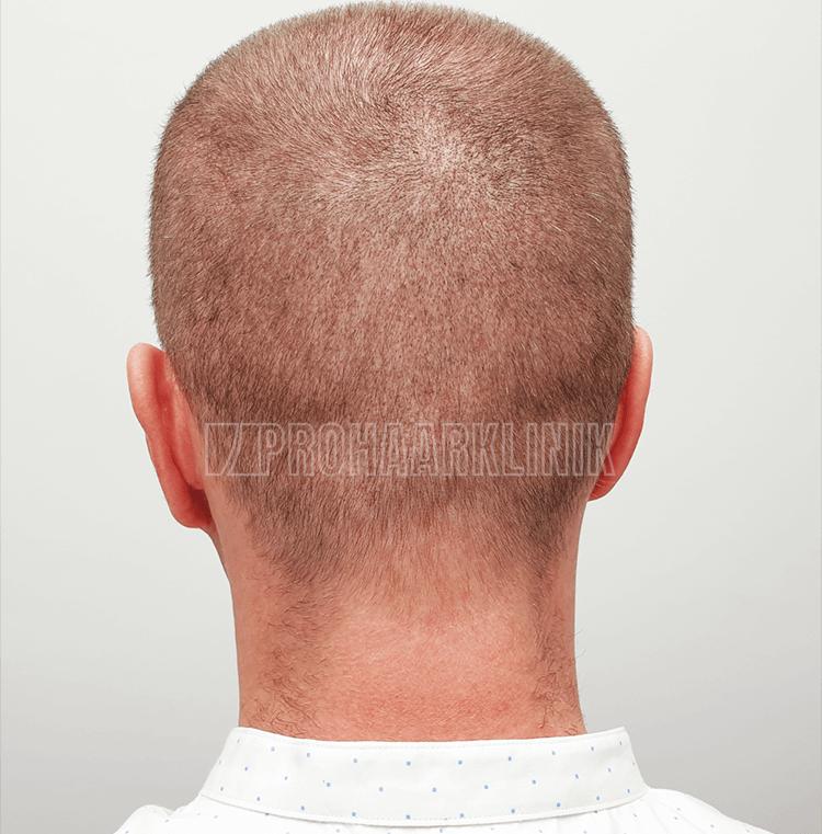 Patient 1: Spenderbereich 6. Tag nach der FUE3-Haarextraktion