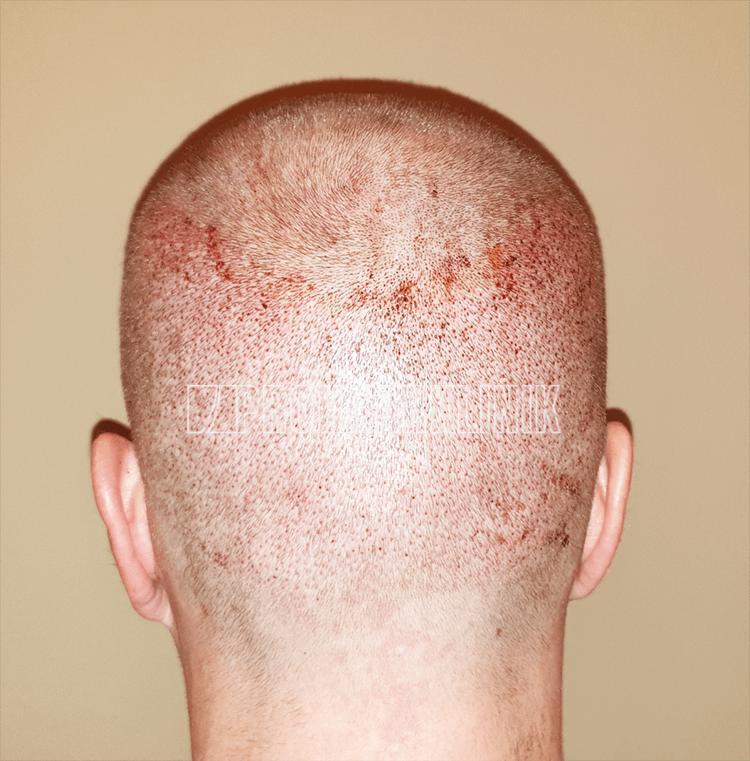 Patient 1: Spenderbereich 24 Stunden nach der FUE3-Haarextraktion