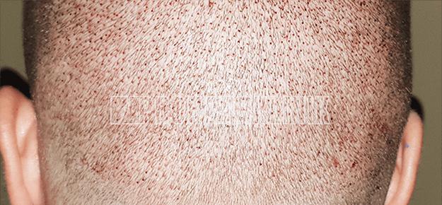 Patient 1: Spenderbereich 48 Stunden nach der FUE3-Haarextraktion