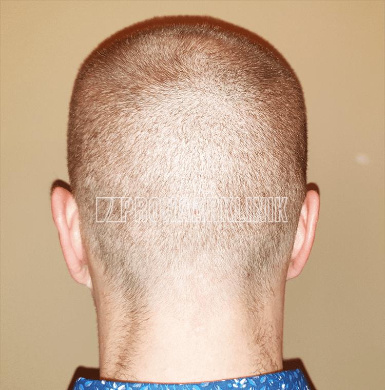 Patient 1: Spenderbereich 10. Tag nach der FUE3-Haarextraktion