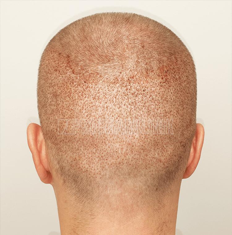 Patient 1: Spenderbereich 72 Stunden nach der FUE3-Haarextraktion