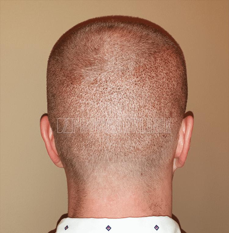 Patient 1: Spenderbereich 96 Stunden nach der FUE3-Haarextraktion
