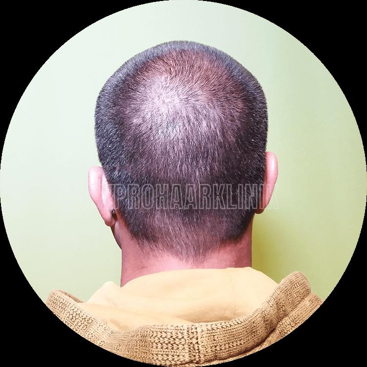 Patient 2: Spenderbereich 1 Stunde vor der FUE3-Haarextraktion