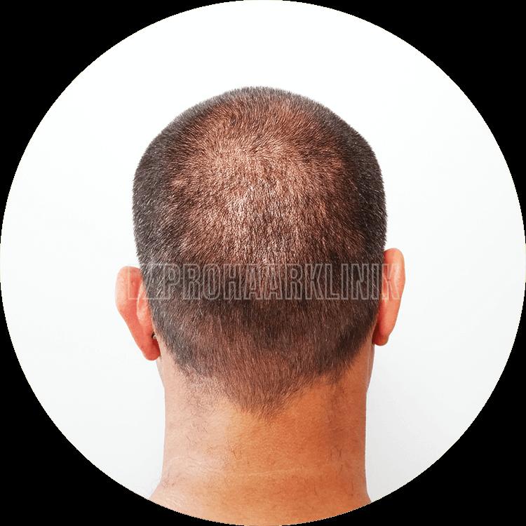 Patient 2: Spenderbereich 10. Tag nach der FUE3-Haarextraktion